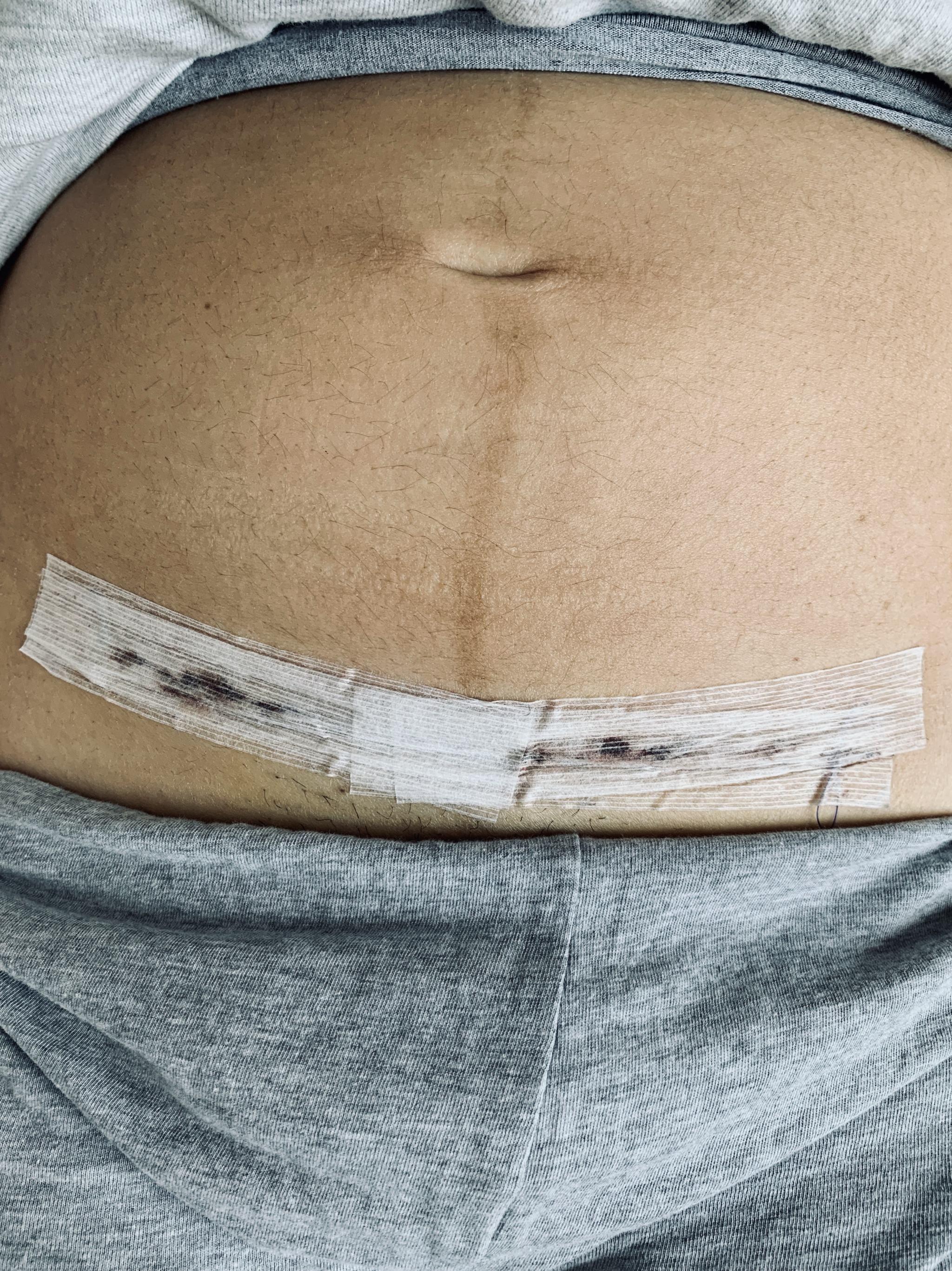 Haut nach schwangerschaft